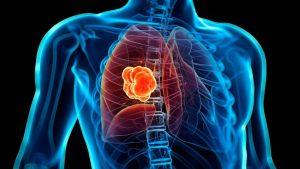 Revelan cáncer de pulmón es el quecausa más muertes a nivel mundial
