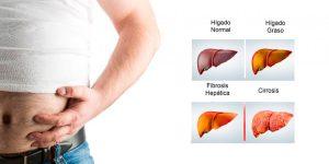 Más de la mitad de quienes padecen hígado graso no alcohólico lo desconocen