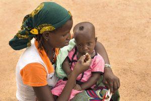 Al menos 33.000 menores sufren desnutrición grave en el norte de Etiopía