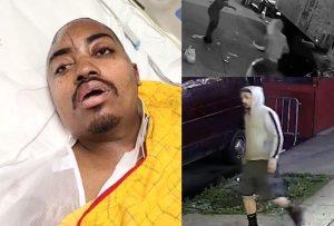 Un dominicano grave después de ser emboscado y golpeado en calle de El Bronx