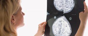 La COVID-19 puede preceder al síndrome de Guillain-Barré en casos raros